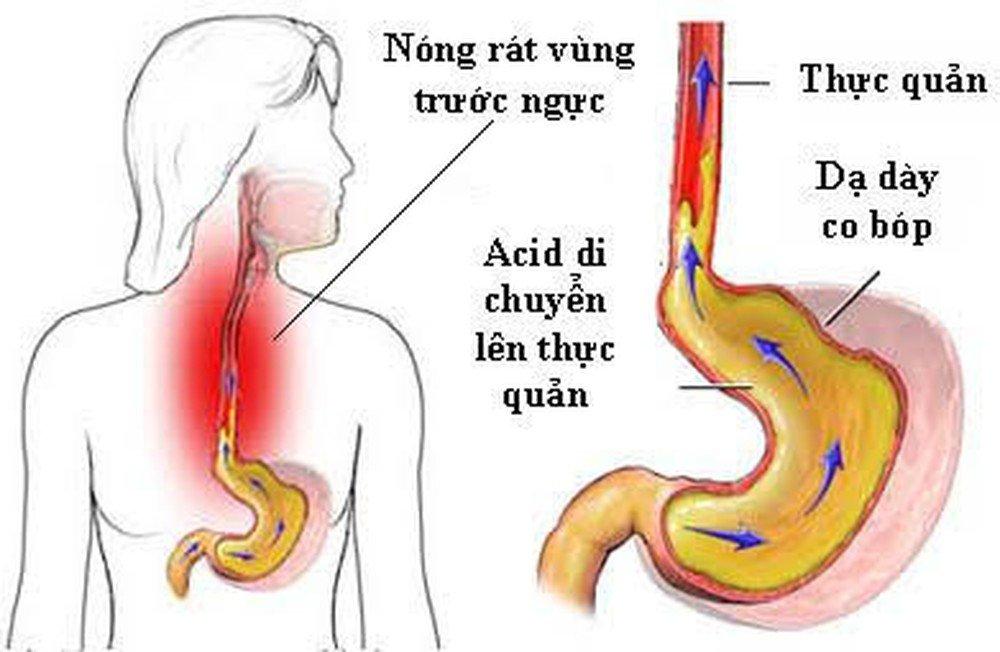 Đánh tan nỗi lo bệnh trào ngược dạ dày cùng dadayhpplus.com