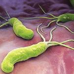 Bạn đã biết về bệnh dạ dày do khuẩn Hp gây ra chưa ?