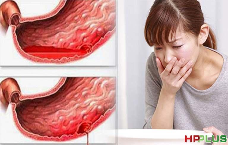 Chảy máu dạ dày là một biến chứng nguy hiểm của đau dạ dày mãn tính