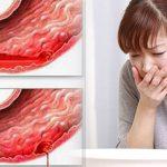 Những dấu hiệu chảy máu dạ dày mà bạn cần quan tâm