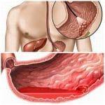 Chảy máu dạ dày có nguy hiểm không?