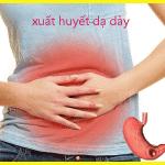 06 Triệu chứng cơ bản nhất của căn bệnh xuất huyết dạ dày