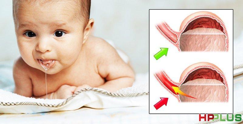 Đừng lơ là với trào ngược dạ dày thực quản ở trẻ sơ sinh | Vinmec