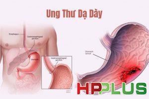 ung thu da day