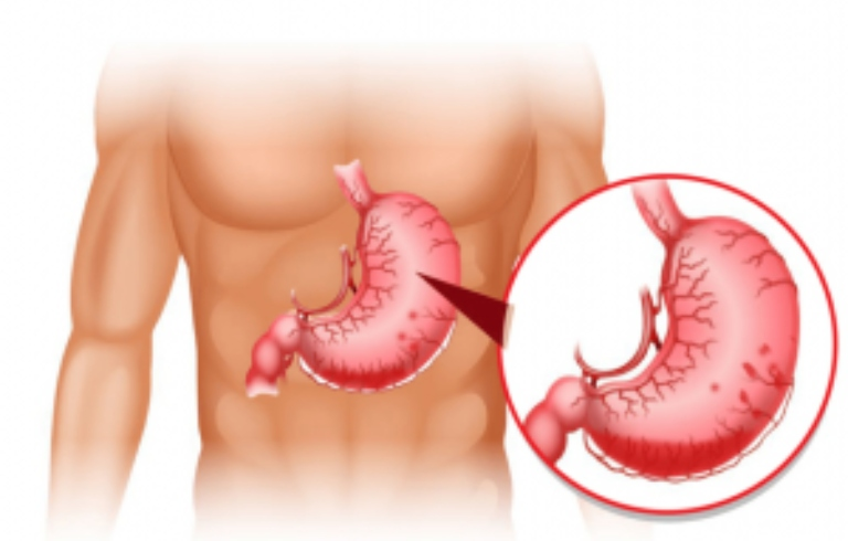 Thuốc đau dạ dày, triệu chứng và các lưu ý khi sử dụng thuốc đau dạ dày.